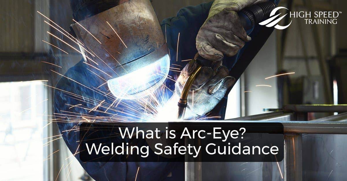What Is Arc Eye Welding Safety Guidance High Speed Training
